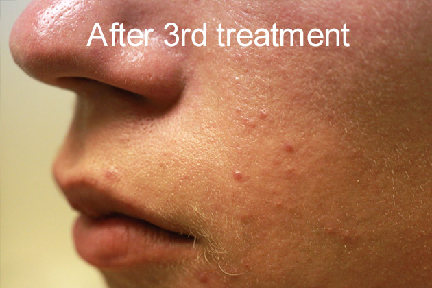 Beauty-professionals-after-3-treatment