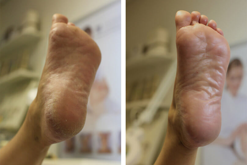 Beauty-professionals-pedicure-gallery-pedicure-before-and-after