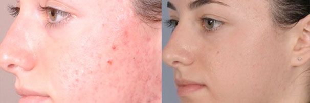 Acne Treatment & Milia Removal